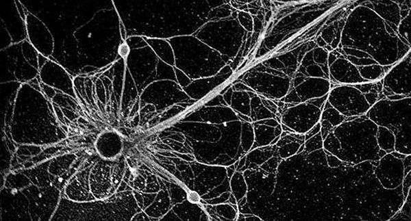 synapse-hjerne